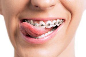 orthodontist springvale