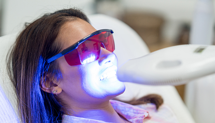 Teeth Whitening At Home Vs. at the Dentist
